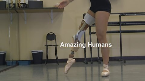 The disabled dancer who went viral