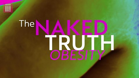 The Naked Truth about obesity