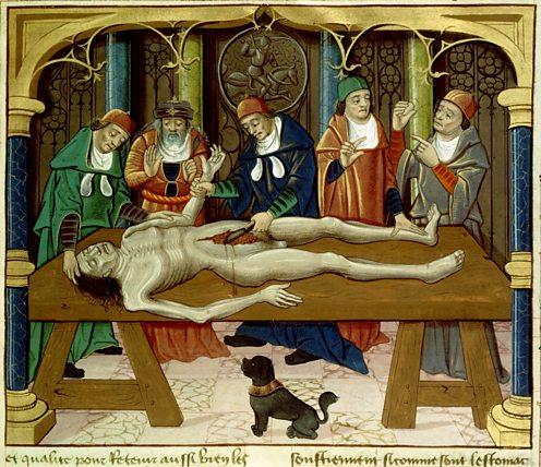 15th century autopsy