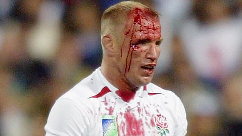 Neil Back the England flank forward ordered off by the ref with a head injury