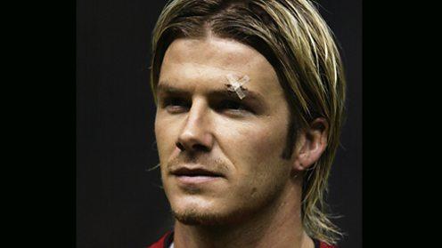 David Beckham with a cut eye after a clash with Sir Alex Ferguson.
