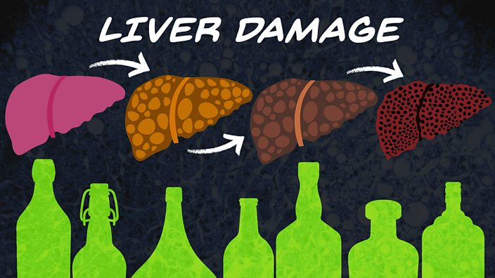 An illustration of the stages of liver disease
