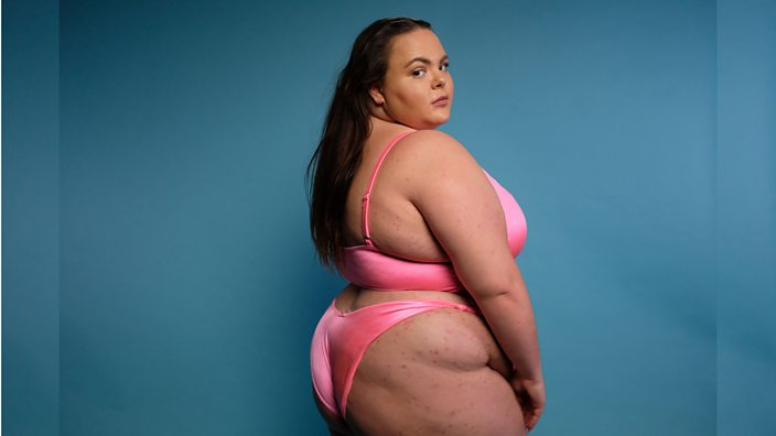 Megan from Skin