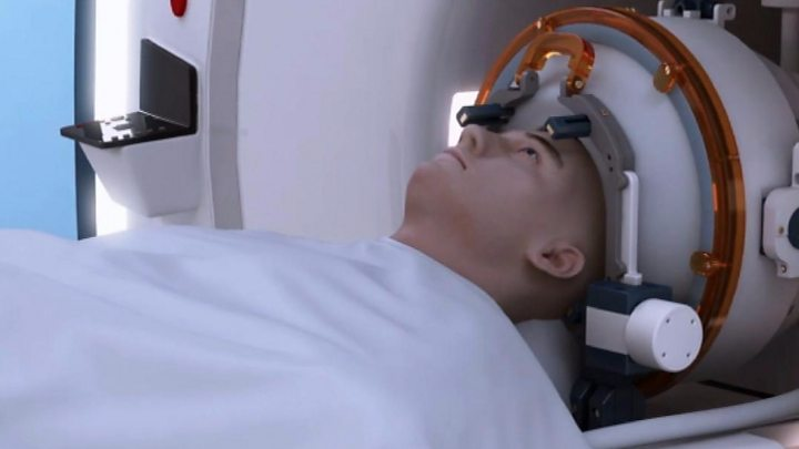 Doctors Use Deep Brain Ultrasound Therapy To Treat Tremors