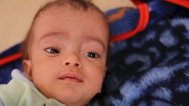 Yemen cholera cases pass 300000 as outbreak spirals: ICRC