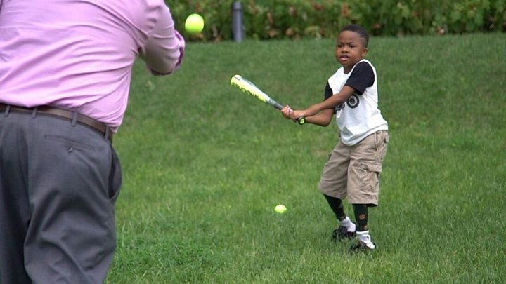 Double hand transplant boy takes up baseball