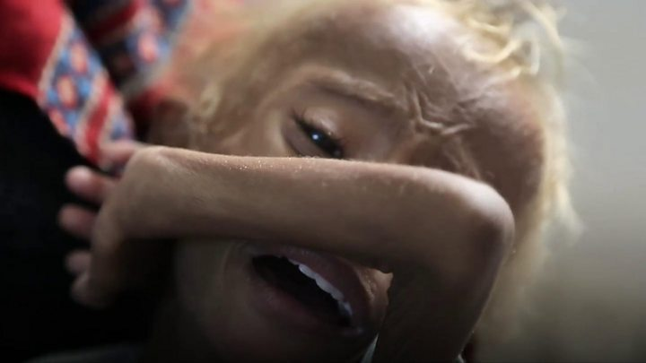 United Nations experts to investigate war-crimes in Yemen despite Saudi threats