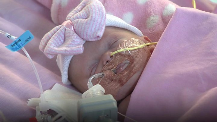 Doctors save baby born with heart outside her body