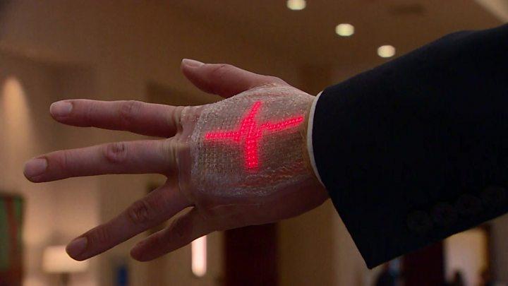 Wearable technology for stroke patients