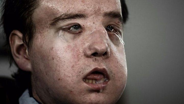 el hombre de tres caras que durante dos meses vivió sin rostro en