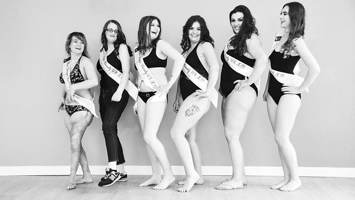 Caerphilly burns survivor 'excited' to enter beauty pageant