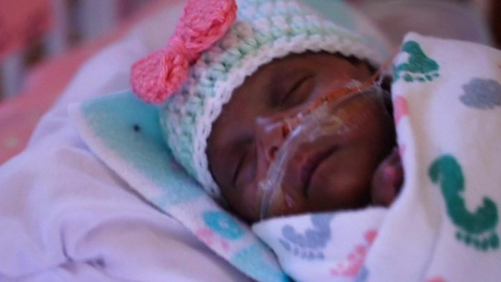 'World's smallest' surviving premature baby released from US hospital