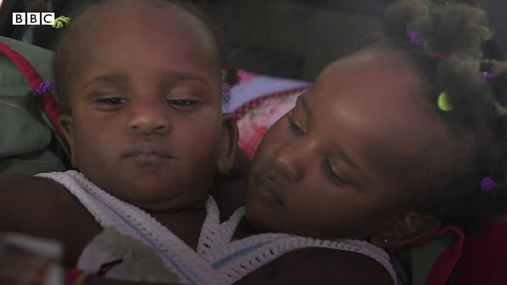Conjoined twins Marieme and Ndeye prepare to start Cardiff nursery