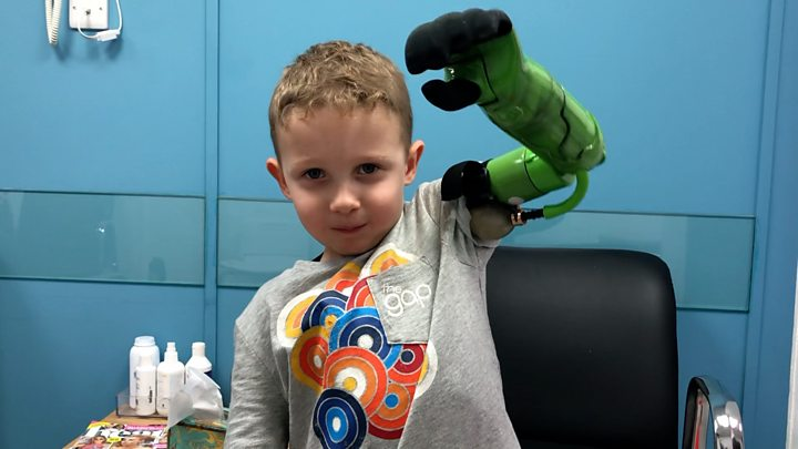 Boy, 5, given prosthetic arm that lets him hug brother