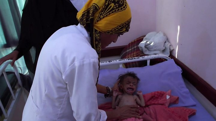 Saudi-led coalition begins Yemen ceasefire