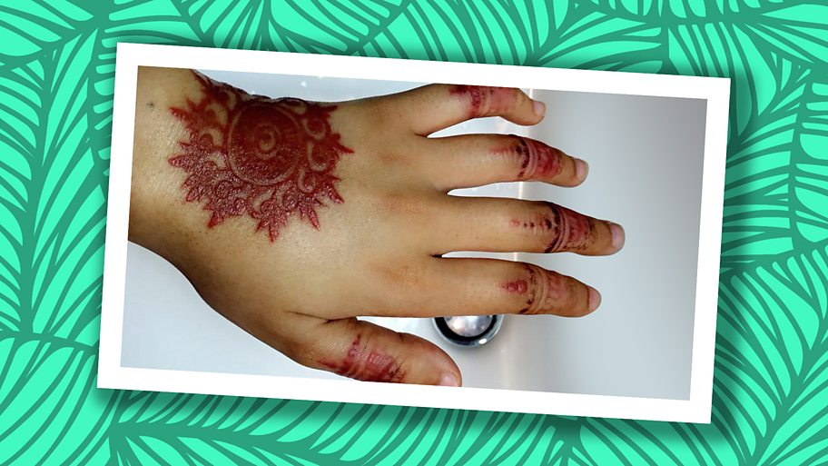 Deena was left with severe, potentially permanent scarring on her hand