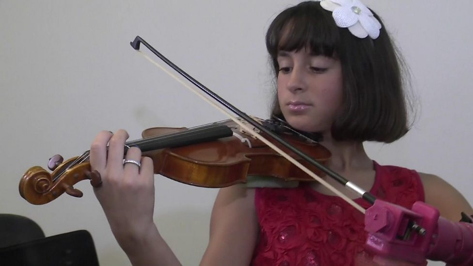 Girl plays violin with 3D printed arm