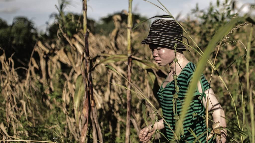 An albino walking in a field in Malawi