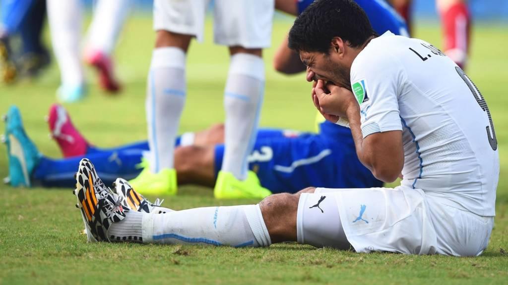 Suarez holds his teeth