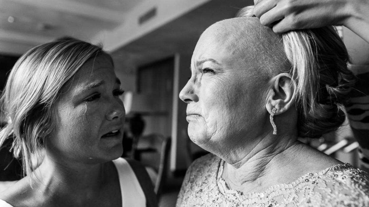 A woman who has lost her hair following chemotherapy has a wig fitted on her daughter