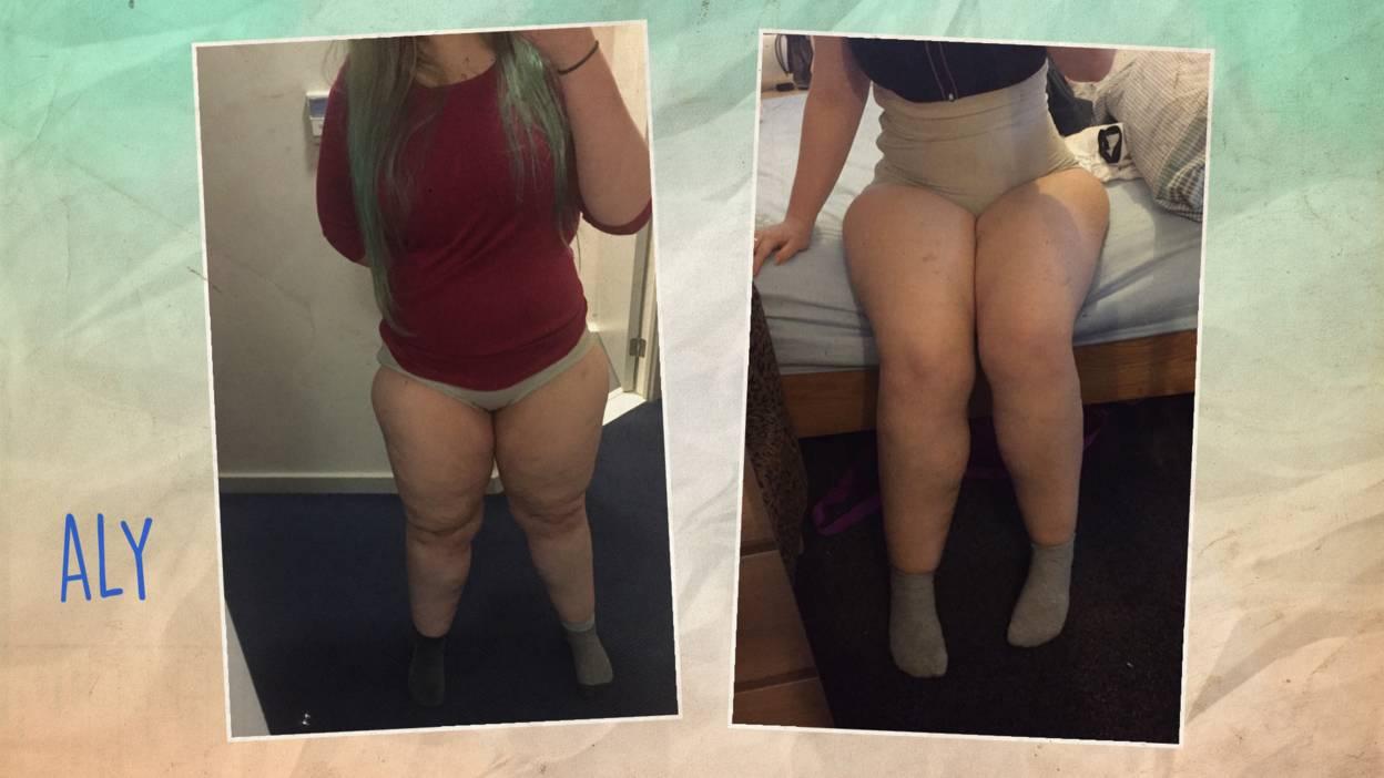 I'm not fat, I've got lipoedema - BBC Three