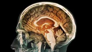 人腦MRI圖像