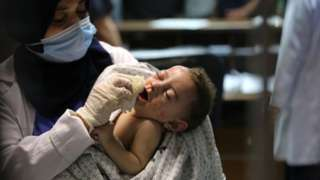 A baby injured in Israeli attack carried out to home of Palestinian Abu Khatab Familiy living in Al-Shati Camp in Gaza Strip, being brought to Shifa Hospital on May 15, 2021, in Gaza City, Gaza