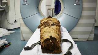 The mummified body of Nesyamun laid on the couch to be CT scanned at Leeds General Infirmary