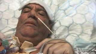 Gary Brooks in hospital