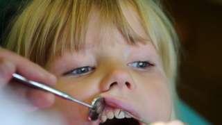 Child's dental inspection