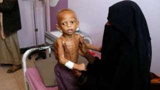 طفل يمني يعاني من سوء التغذية عمره سنتين، في قسم سوء التغذية بمستشفى السبعين، حيث يتلقى العلاج في 13 فبراير /شباط 2021 بصنعاء.