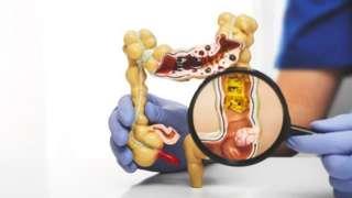Em geral, os divertículos se desenvolvem no sigmoide, parte inferior esquerda do intestino grosso