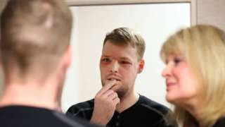 In this Jan. 24, 2017, photo, face transplant recipient Andy Sandness looks in a mirror during an appointment with physical therapist Helga Smars, right, at Mayo Clinic in Rochester, Minn