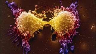 Bölünmekte olan kanser hücreleri