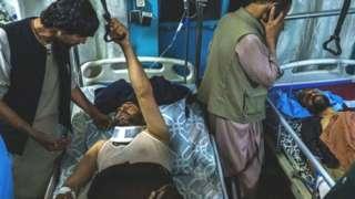 Kabul bombing survivor in hospital