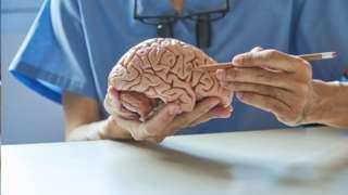 Médico segurando um cérebro