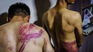 Journalists from the Etilaatroz newspaper, Nemat Naqdi, 28, a video journalist, left and Taqi Daryabi, 22, video editor undress to show their wounds sustained after Taliban fighters tortured and beat them while in custody after they were arrested for reporting on a women's rights protest in Kabul, Afghanistan, Wednesday, Sept. 8, 2021