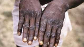 Monkeypox case