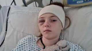 Grace in hospital following surgery to remove a brain tumour