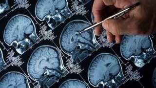 ภาพการสแกนเอ็มอาร์ไอสมอง