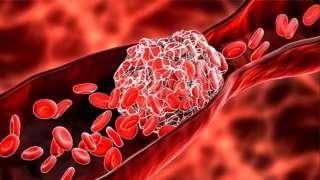 કોરોના રસી અને લોહી ગંઠાઈ જવું