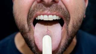 Man sticking out his tongue during an examination