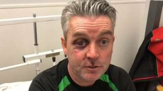 Referee sustains serious facial injuries