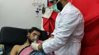 Сирийские власти отвергали обвинения в том, что военные когда-либо применяли химоружие. На фото пострадавший от предположительно произошедшей в Саракибе газовой атаки хлором в феврале 2018