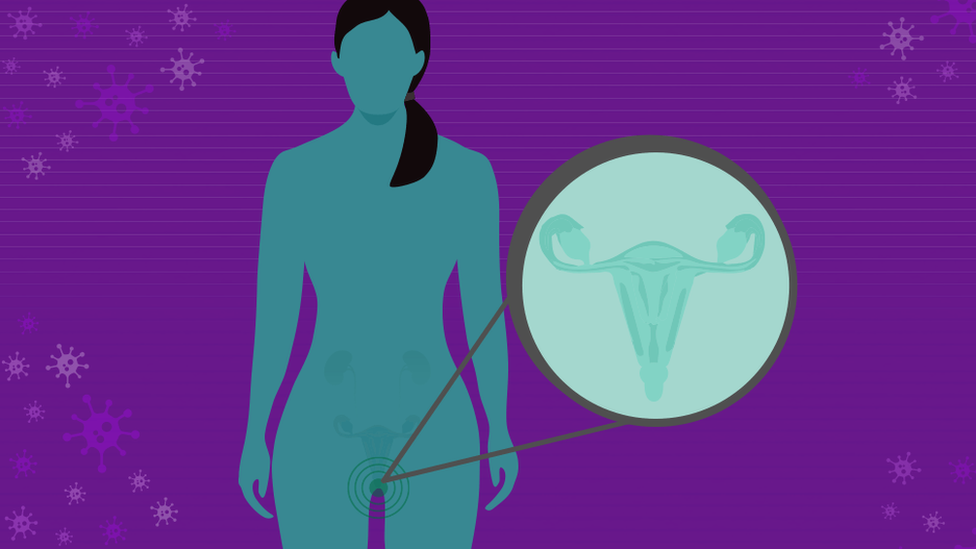 Diagram of woman with cervix pointed out