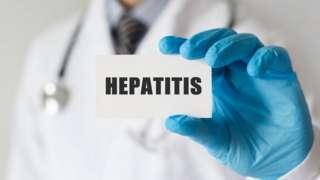 """Un médico con una tarjeta que dice """"hepatitis"""""""