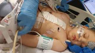 Brayden Bull lying in hospital bed