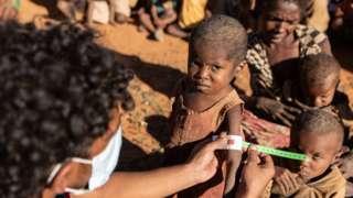 Retoboha, 4, obtendo medições de MUAC feitas por funcionários do PMA em Ambovombe, um dos distritos com um número muito alto de crianças desnutridas.