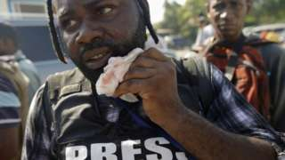 Photojournalist Chery Dieu Nalio holds a healing gauze next to his mouth