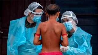 Ребенок перед двумя медработниками